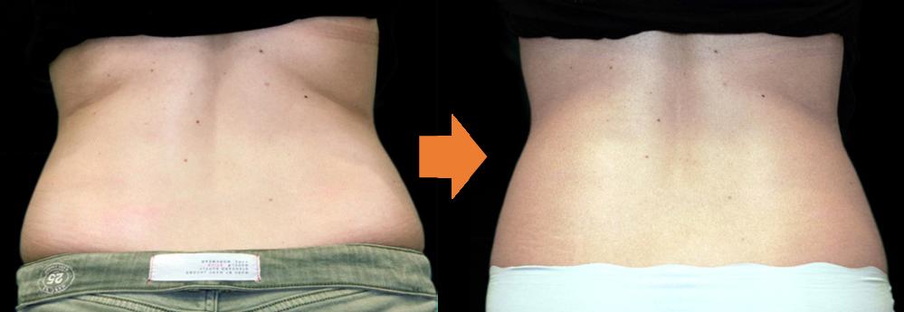 症例写真、腹部背面と腰